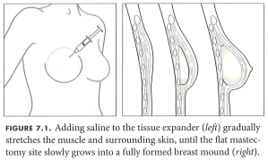 Breast Reconstruction Guidebook Figure 7.1